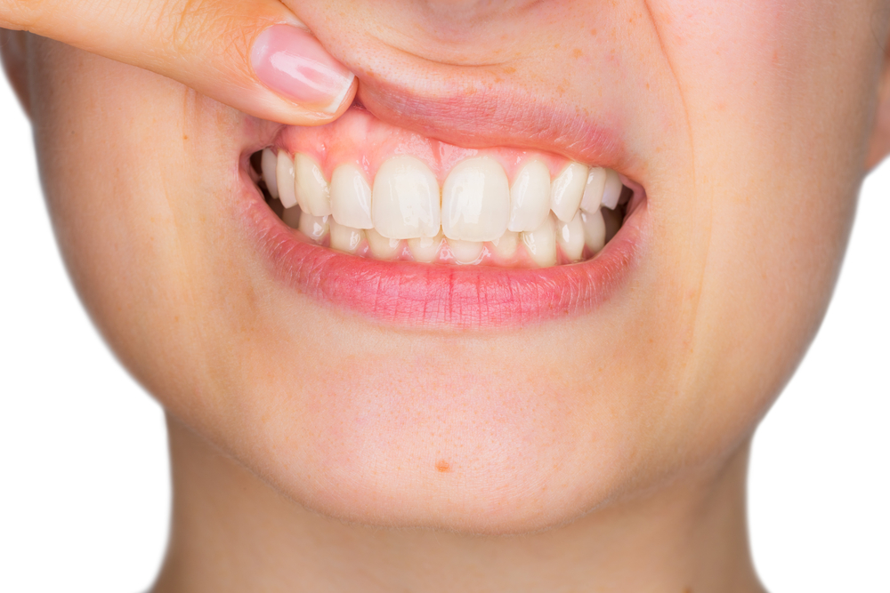 Foods That Can Improve Gum Health